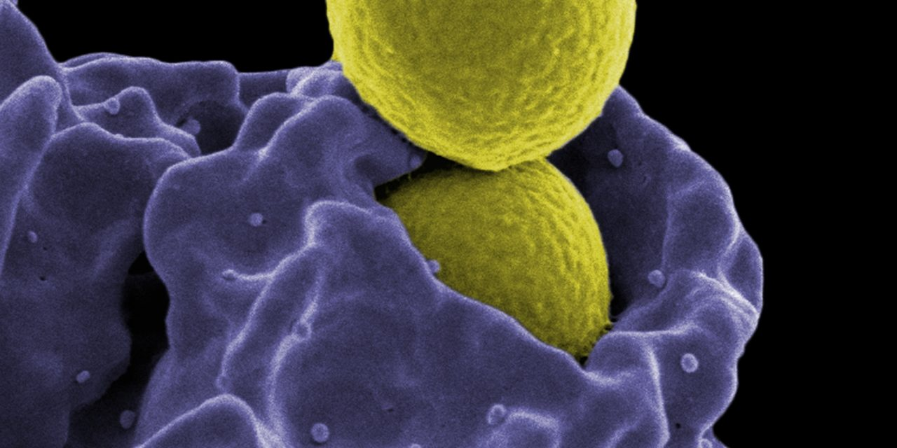 Vitamin D hraje klíčovou roli ve správném fungování imunity