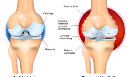 U pacientů s revmatoidní artritidou nacházíme nízké hladiny vitamínu D
