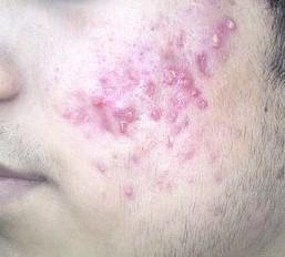 Vitamin D souvisí se závažností akné