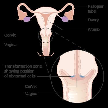 Ženy s nedostatkem vitaminu D mají vyšší riziko infekce děložního čípku rizikovými kmeny HPV