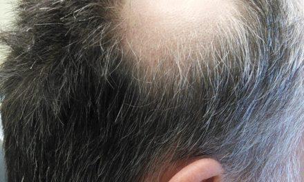 Až 91 % pacientů s alopecia areata trpí nedostatkem vitaminu D
